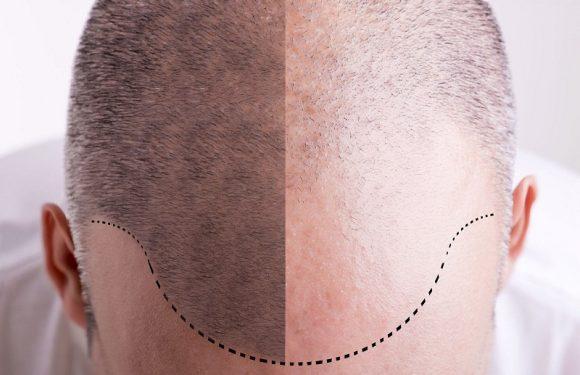 FUE Hair Transplant FAQ's